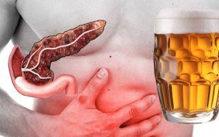 Как лечится алкогольный панкреатит?