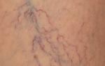 Причины появления вен на груди у женщин, способы удаления