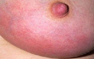 Отличия лактостаза и мастита