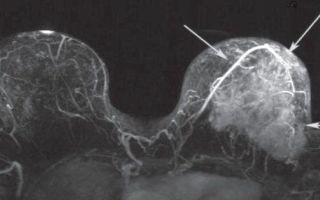 Что такое дуктография молочной железы