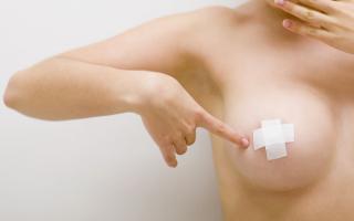 Почему чешется грудь у женщины, лечение зуда