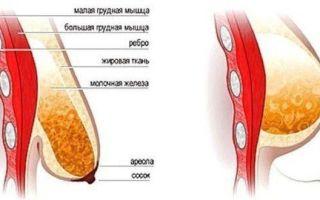 Восстановление груди после родов и кормления