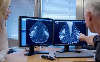 Подготовка к маммографии молочных желез, расшифровка результатов