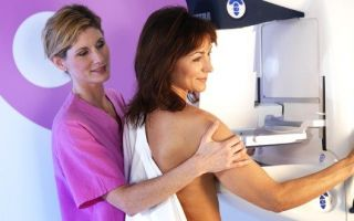 Как правильно подготовиться к маммографии молочных желез
