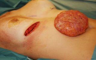 Причины появления капсулярной контрактуры и ее лечение