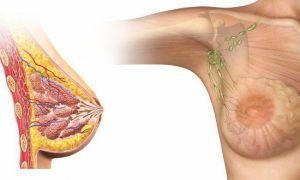 Лимфоузлы в грудной железе у женщин: строение и патология