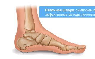 Симптомы и лечение пяточной шпоры