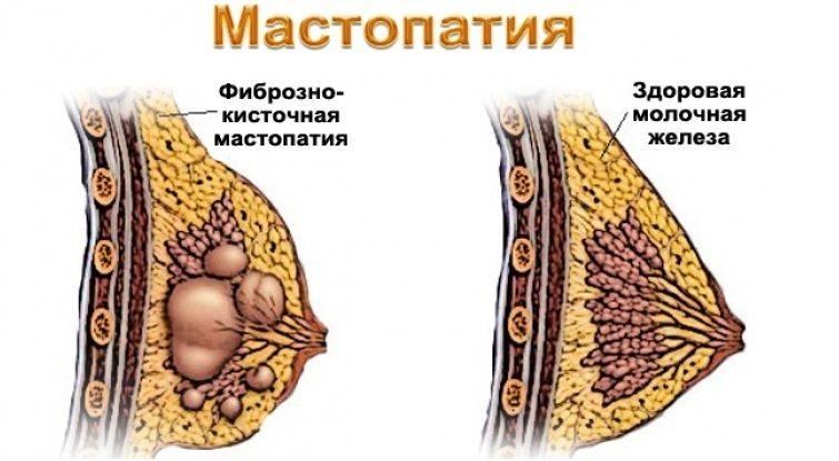 больная и здоровая молочная железа