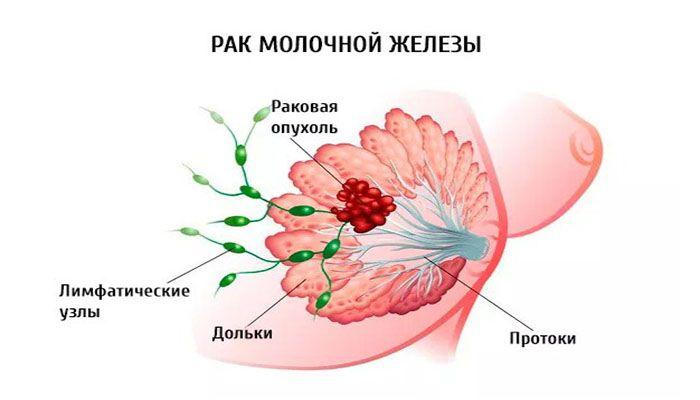 отрицательный рак молочной железы лечение