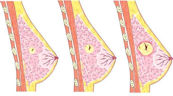 фиброаденома молочной железы в разарезе