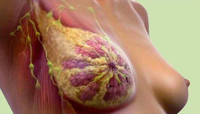 Рак молочной железы является самой распространенной злокачественной опухолью среди женщин
