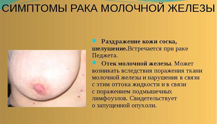 Симтомы рака МЖ