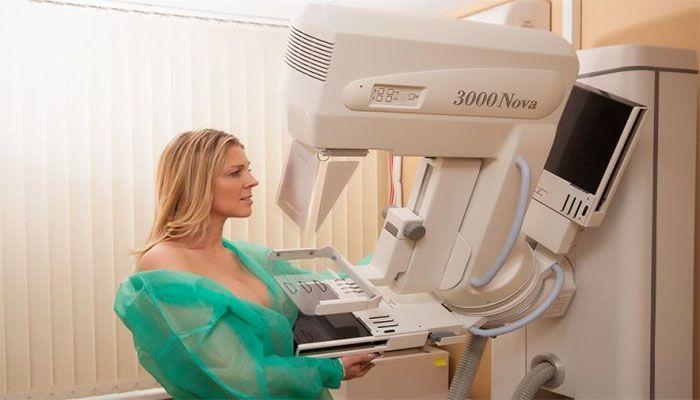 Маммография груди