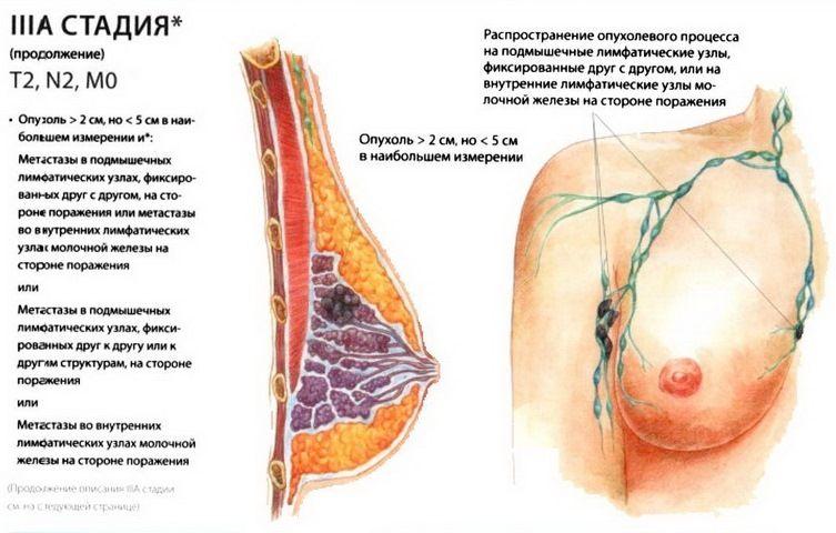 опухолевый процесс в груди