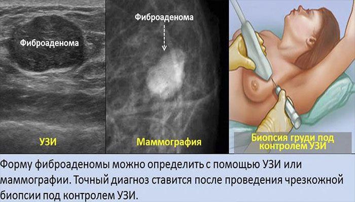 Диагностика фиброаденомы МЖ