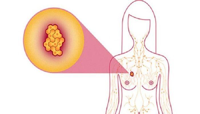 схема мастопатии