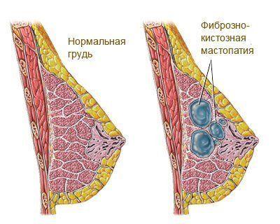 фкм молочной железы
