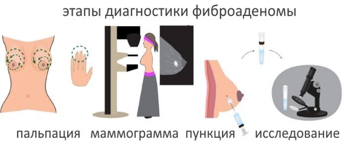 Этапы диагностики фиброаденомы