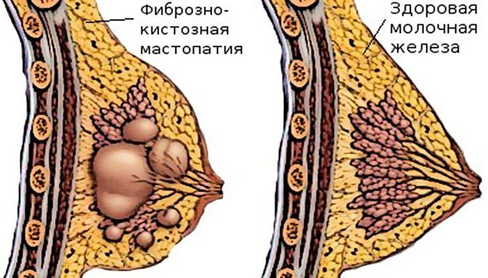 Большая и здоровая железы