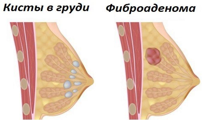 Киста и фиброаденома