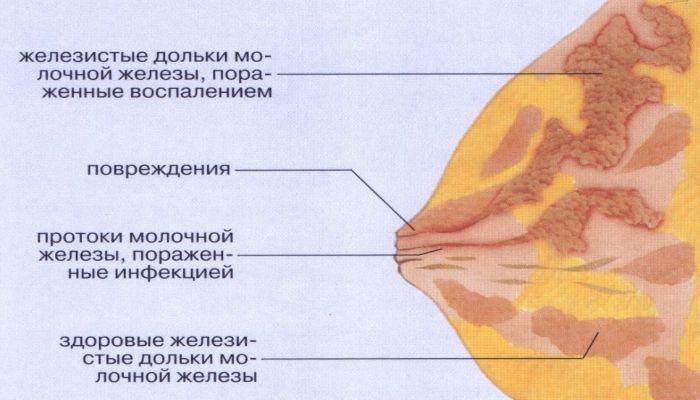 Лечение мастита у женщин