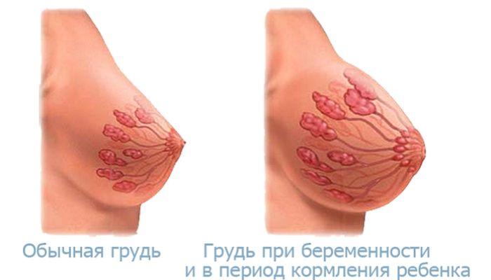 Изменения груди при беременности