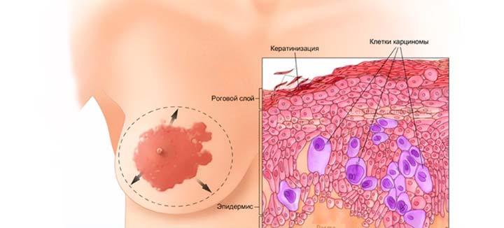 рак Педжета