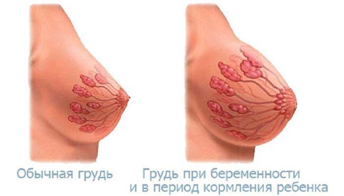 Обычная и беременная грудь