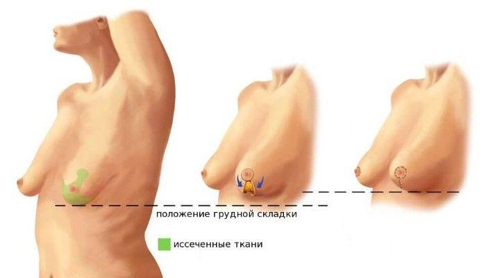 Разного размера грудь - что делать с асимметрией молочной железы