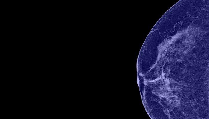 Маммограмма