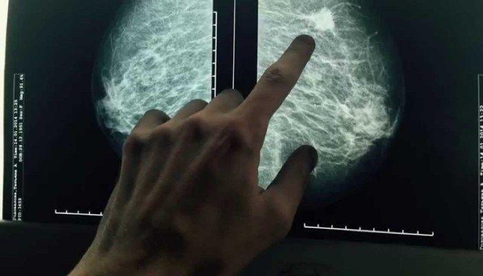 Рентген МЖ