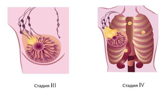 РМЖ 3 и 4 стадии