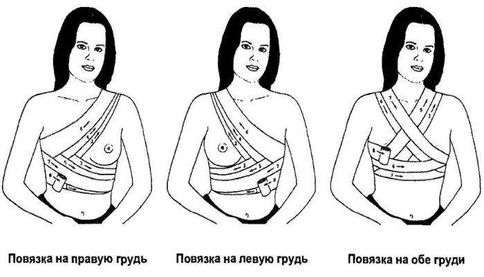Повязки на грудь