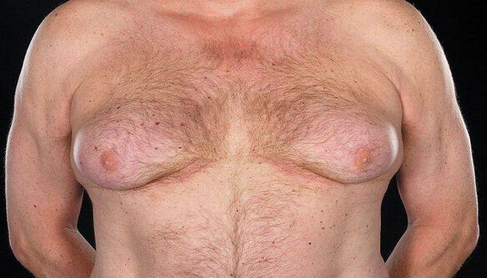 Внешние проявления гинекомастии