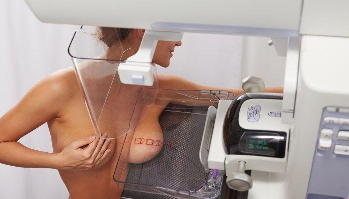 Выявление патологии молочных желез