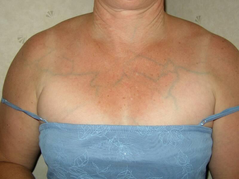 Вены на груди