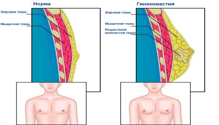 Как выглядит гинекомастия
