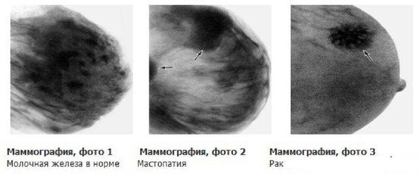 образования в груди на маммограмме