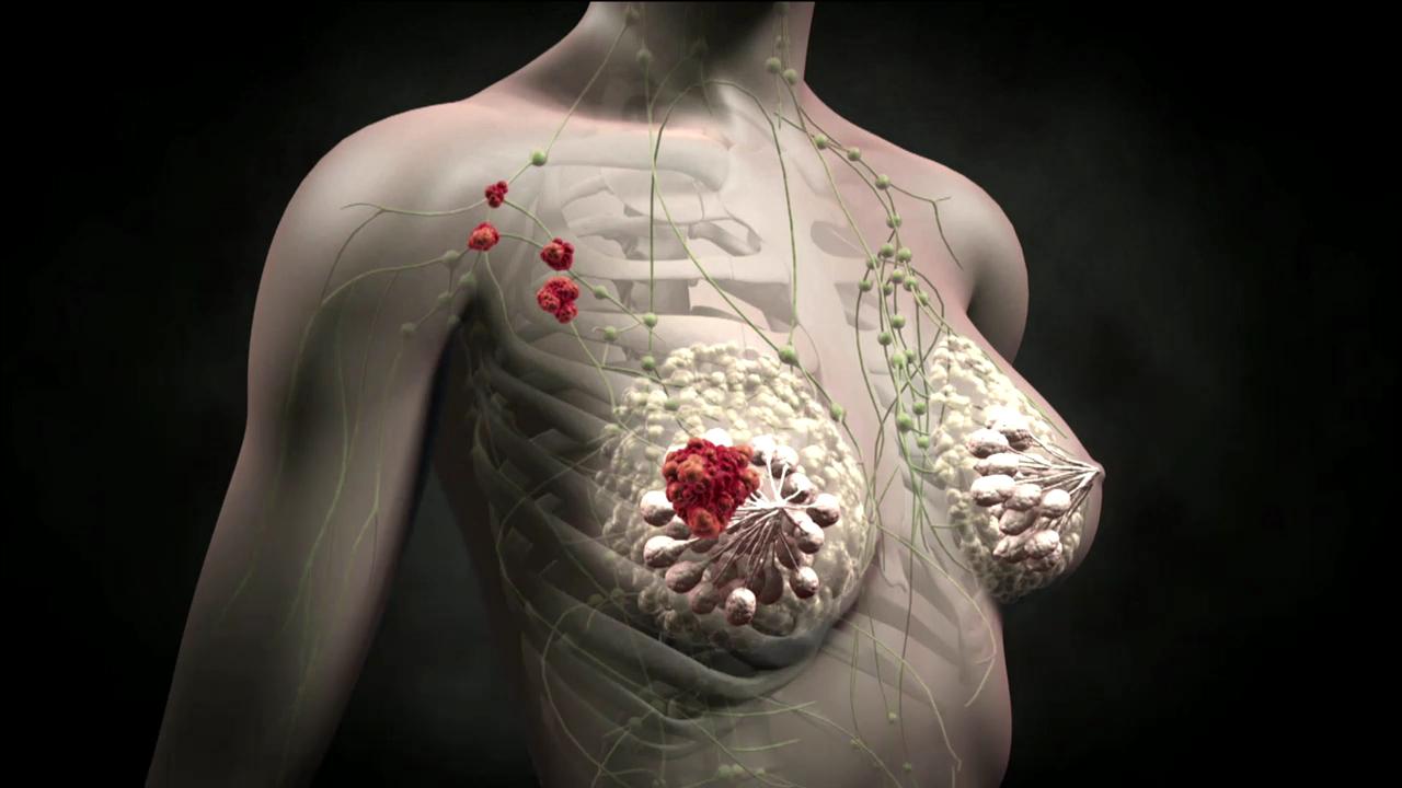 метастазы рака груди