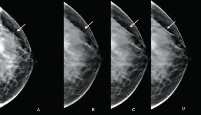 Снимки молочной железы