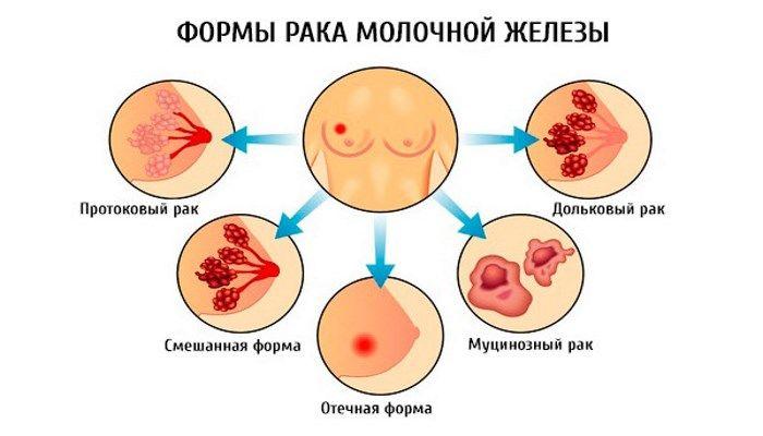 Формы рака молочной железы