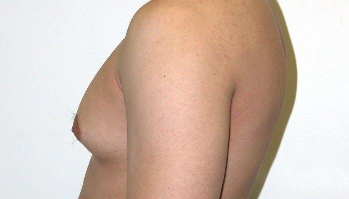 Симптомы гинекомастии