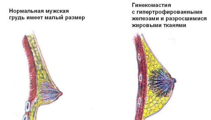 Виды гинекомастии