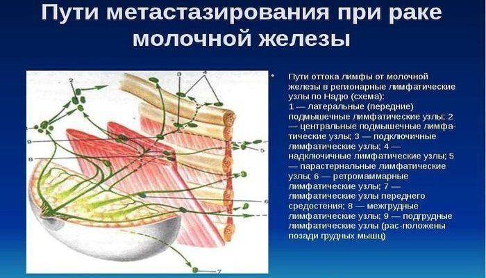 Пути метастазирования при РМЖ