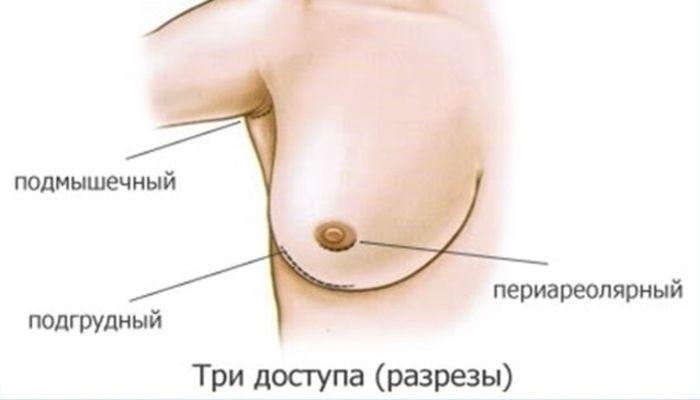 Виды разрезов в хирургии молочных желез