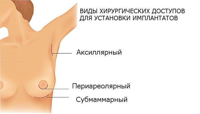 Виды доступов для установки имплантов