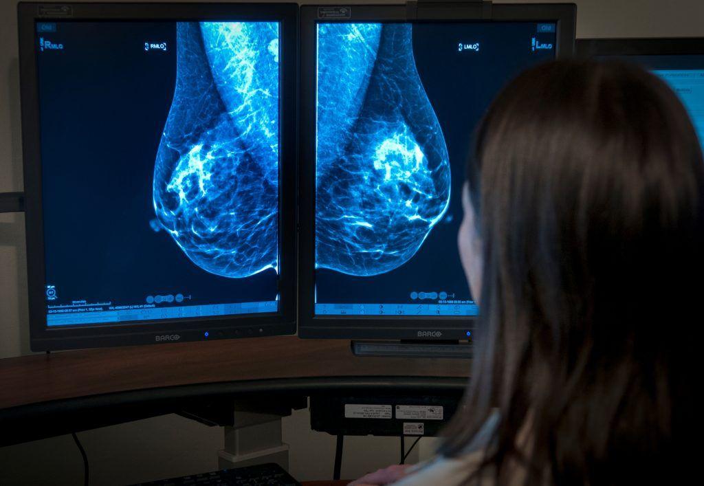 цифровой снимок груди