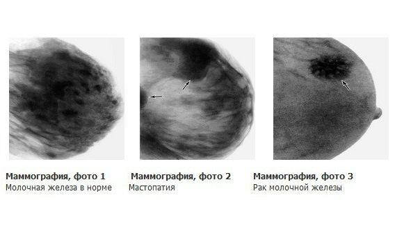 рак и мастопатия на снимке