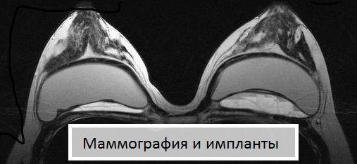 Маммография и импланты