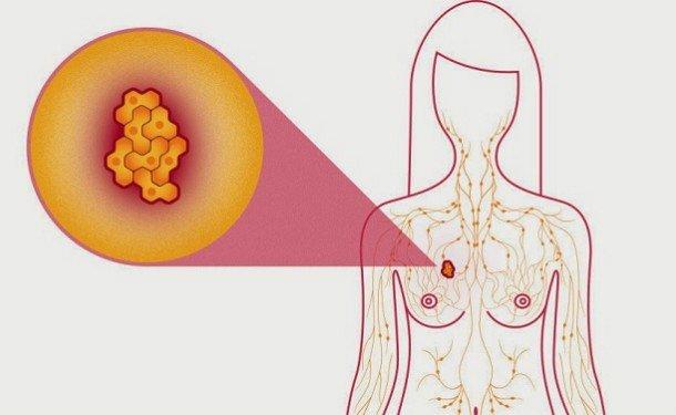 Диагностика рака груди